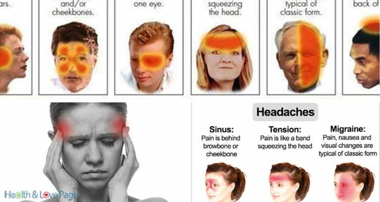 6 Different Types of Headaches (Signs and How to Recognize)