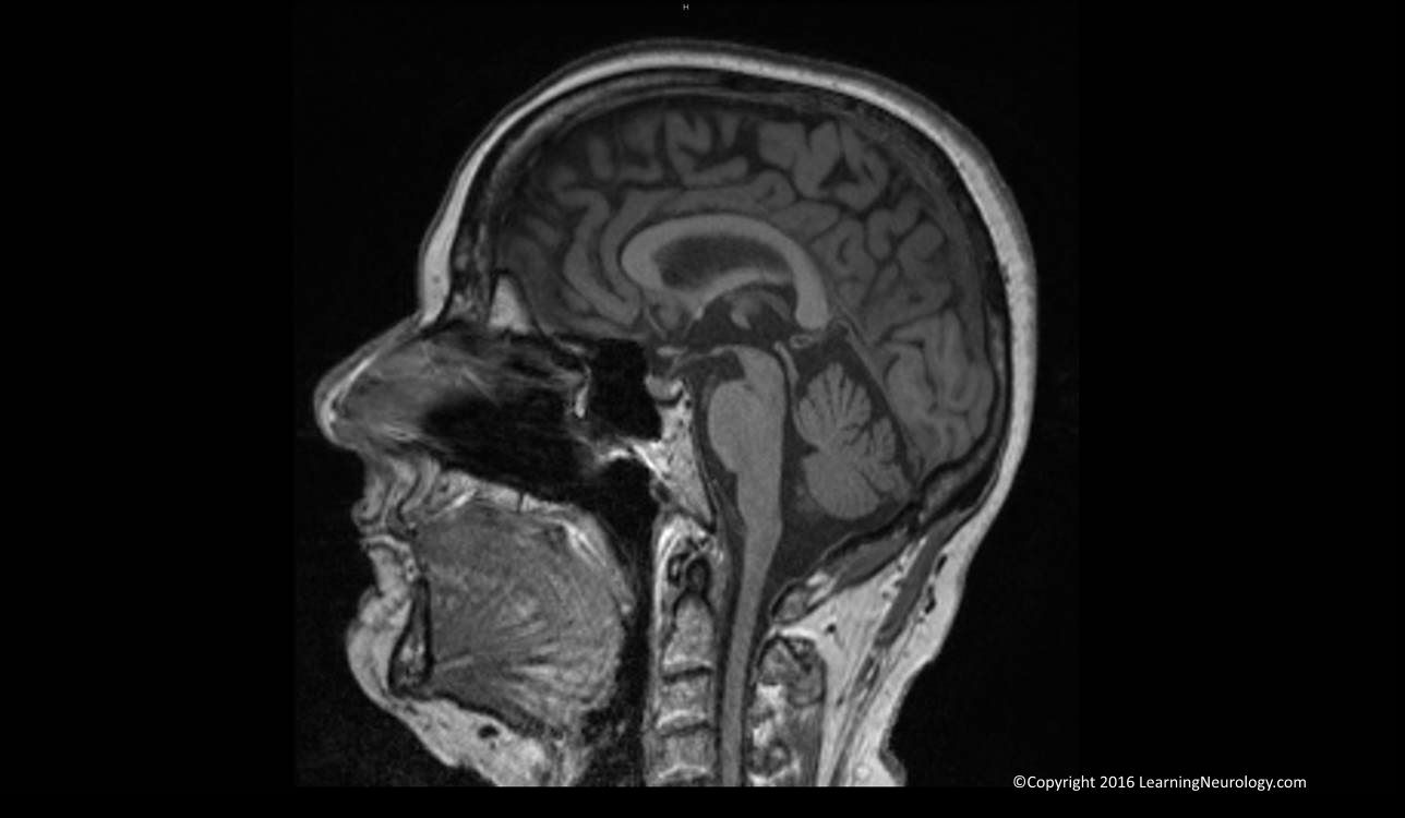 Brain Lesion Detection in MRI Images with Graph cut Algorithms