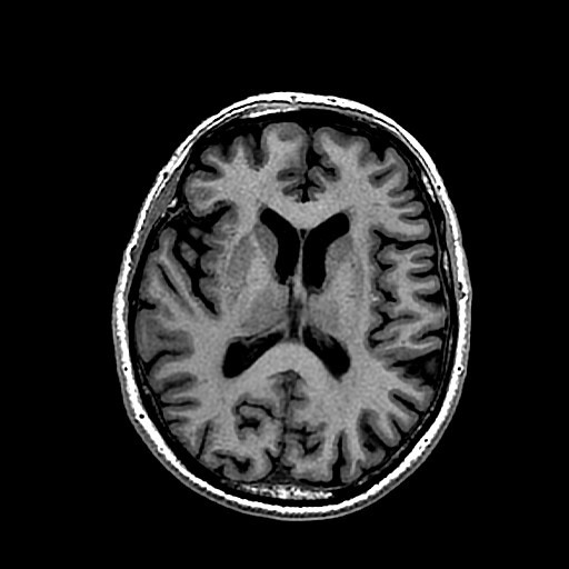 Looking at the brain with MRI — Science Learning Hub