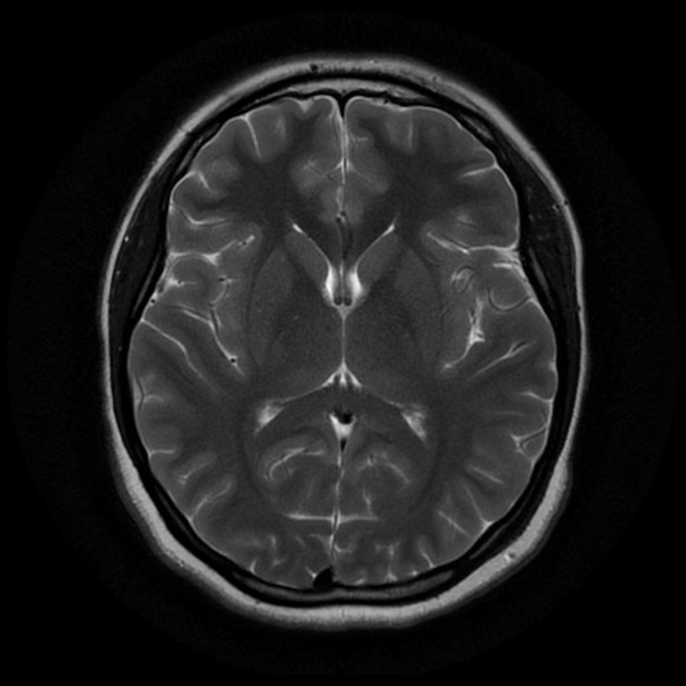 Normal brain (MRI) | Radiology Case | Radiopaedia.org
