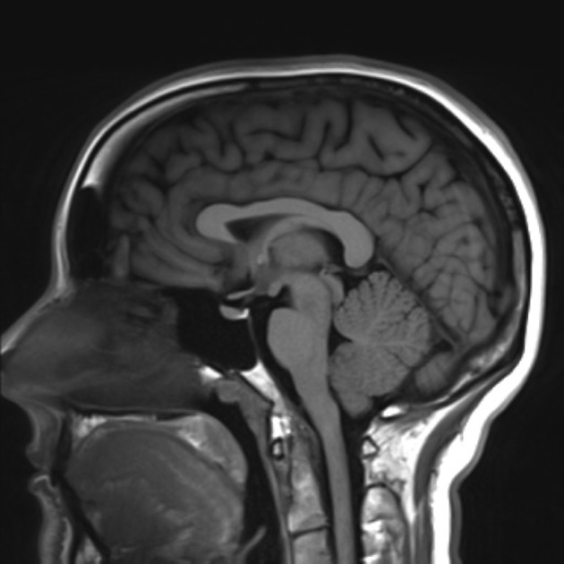 Approach to MRI brain | LearningNeurology.com