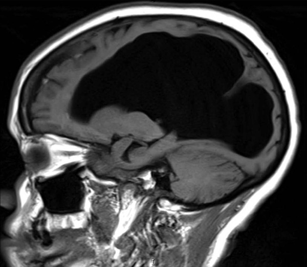 Normal brain MRI | Radiology Case | Radiopaedia.org